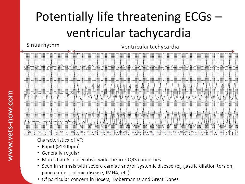 Potentially life threatening ECGs – ventricular tachycardia