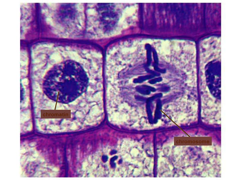 chromatin chromosome Figure: 04-05 Title: Chromosomes. Caption: