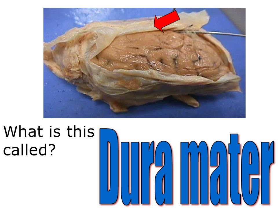 What is this called Dura mater