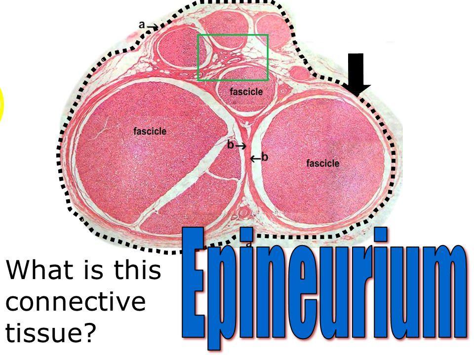 Epineurium What is this connective tissue