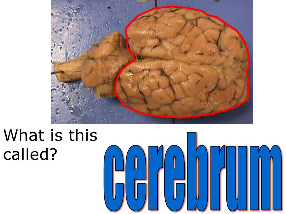 What is this called cerebrum