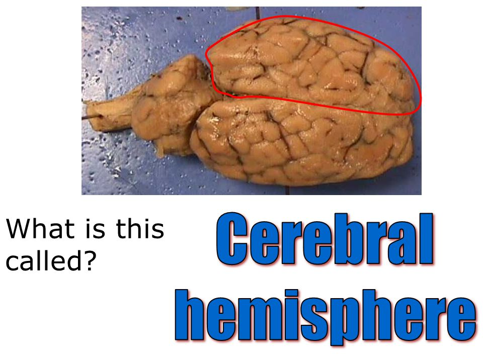 What is this called Cerebral hemisphere