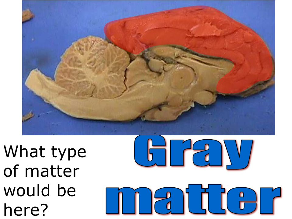 Gray matter What type of matter would be here