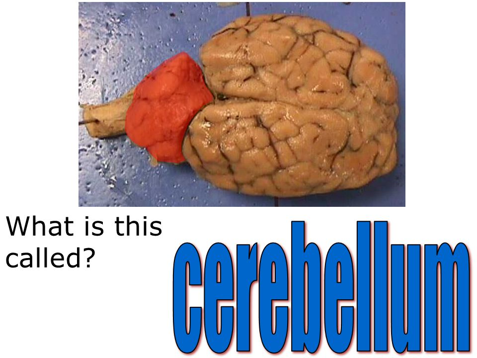What is this called cerebellum