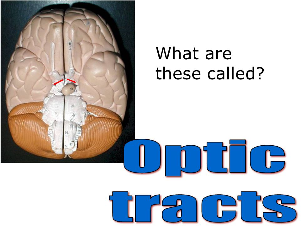 What are these called Optic tracts