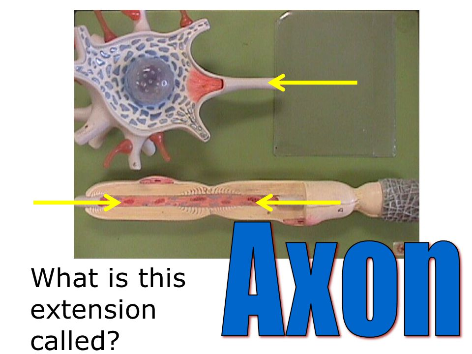 Axon What is this extension called
