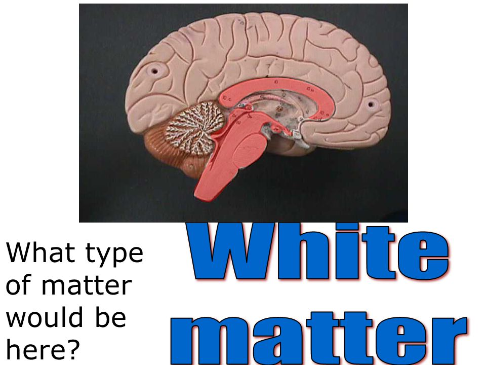 White matter What type of matter would be here