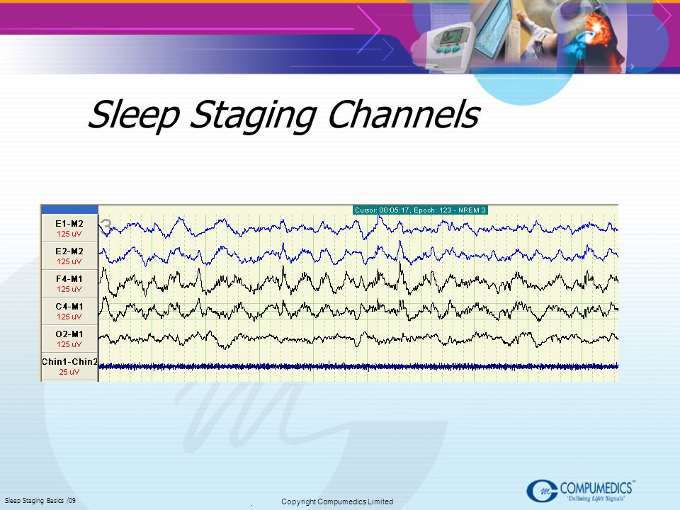 Sleep Staging Channels