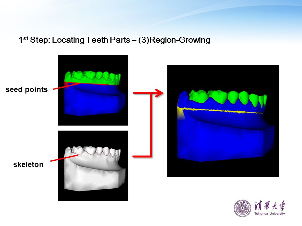1st Step: Locating Teeth Parts – (3)Region-Growing