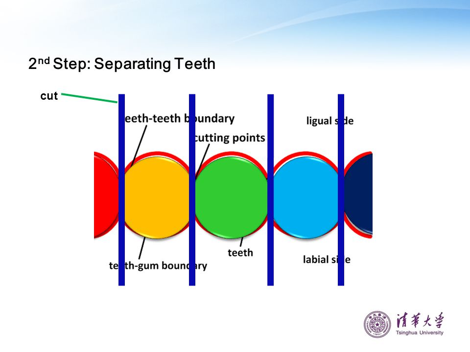 2nd Step: Separating Teeth