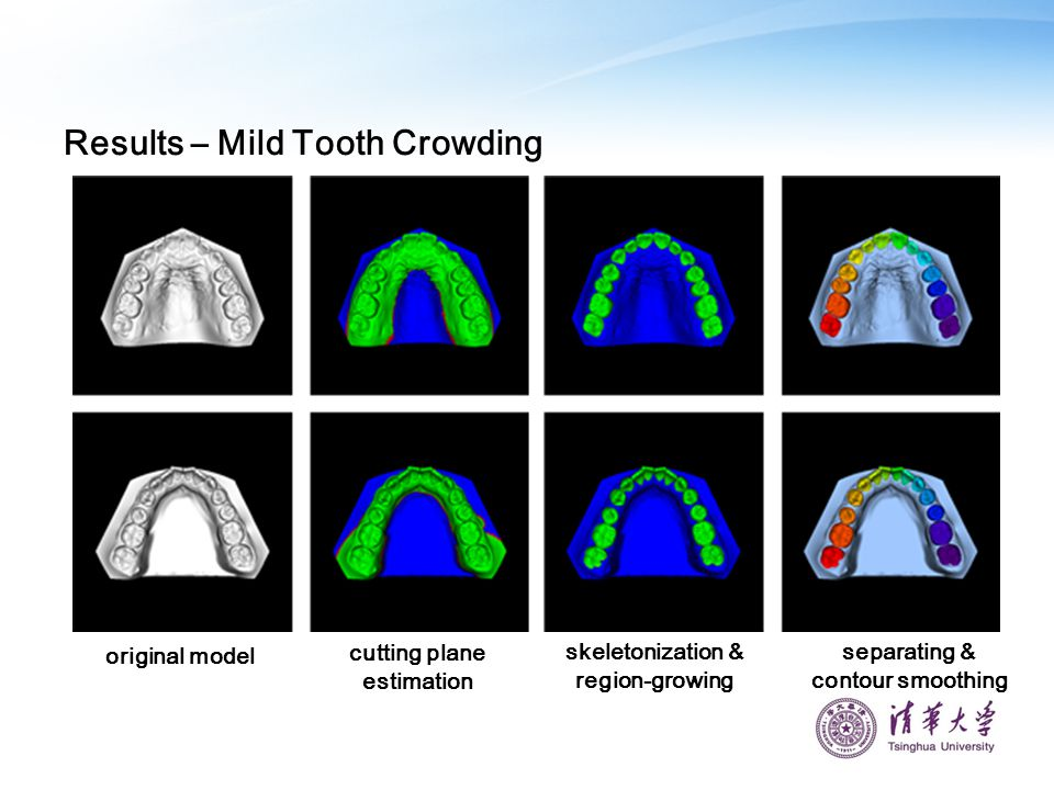 Results – Mild Tooth Crowding