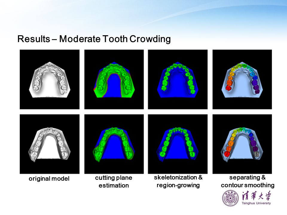 Results – Moderate Tooth Crowding