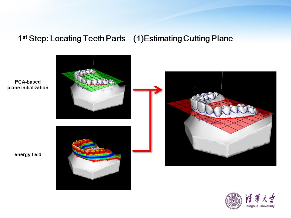 1st Step: Locating Teeth Parts – (1)Estimating Cutting Plane