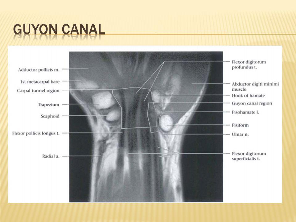 Guyon canal