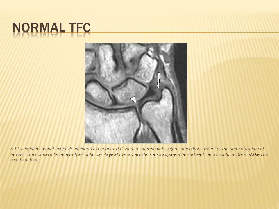 Normal tfc