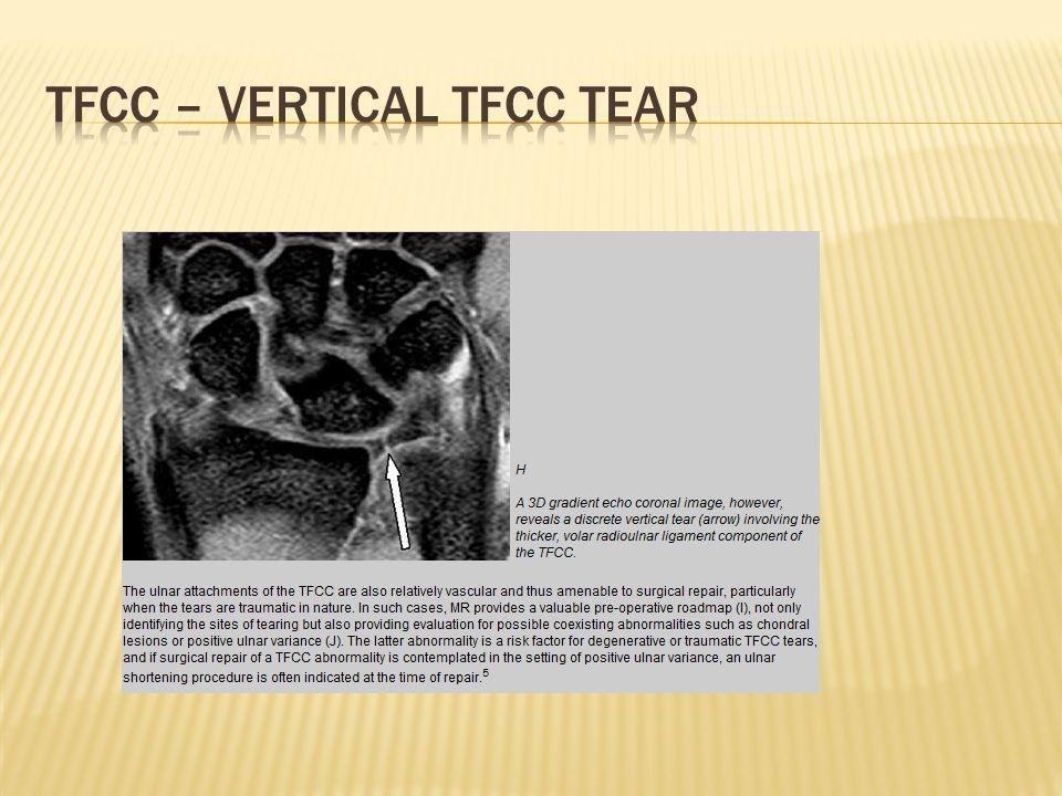 TFCC – vertical tfcc tear