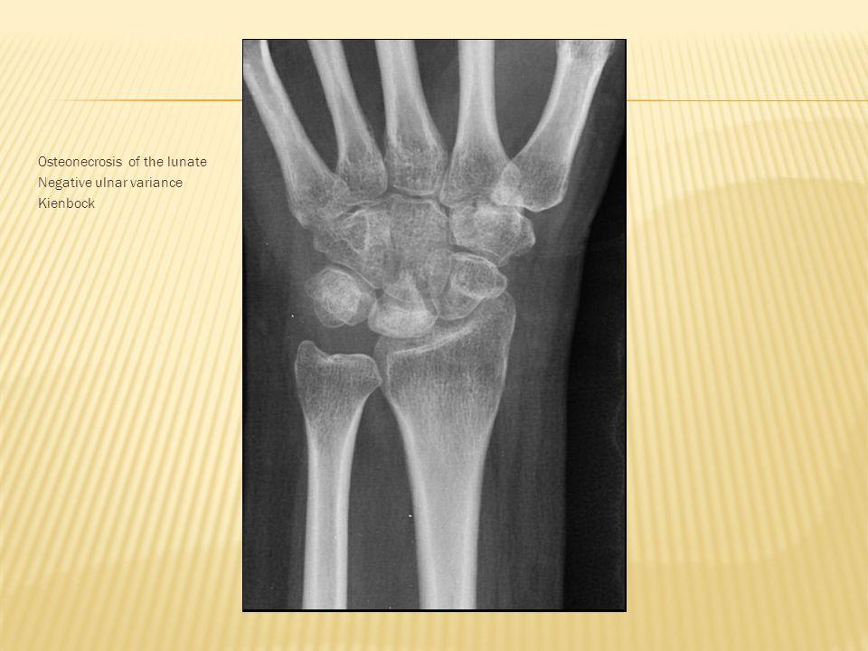 Osteonecrosis of the lunate Negative ulnar variance Kienbock