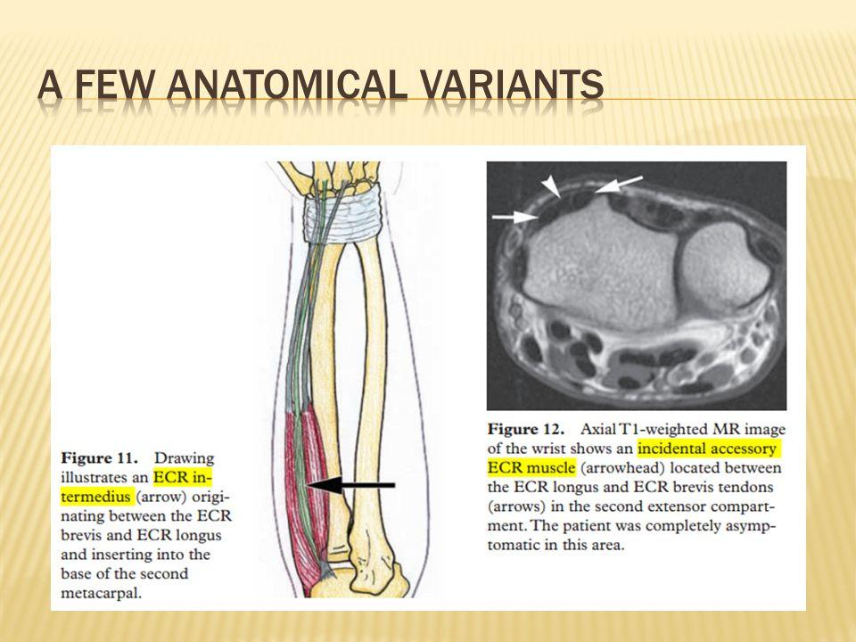A few anatomical variants