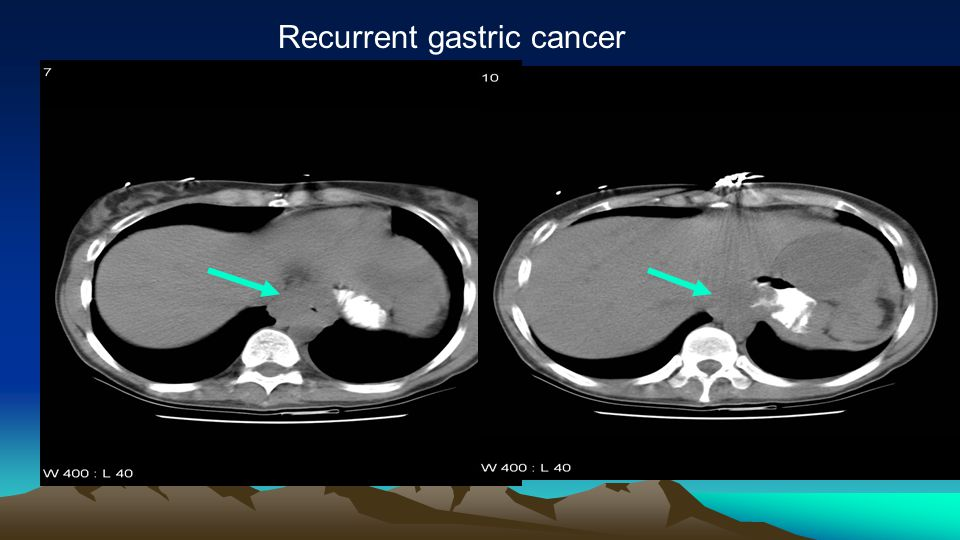 Recurrent gastric cancer