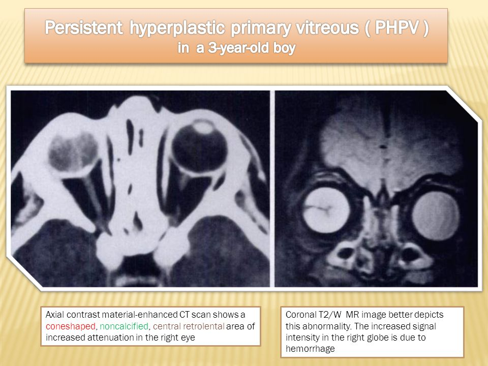 Persistent hyperplastic primary vitreous ( PHPV ) in a 3-year-old boy