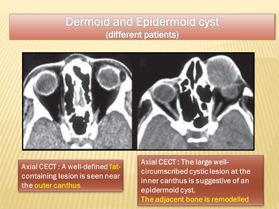 Dermoid and Epidermoid cyst (different patients)