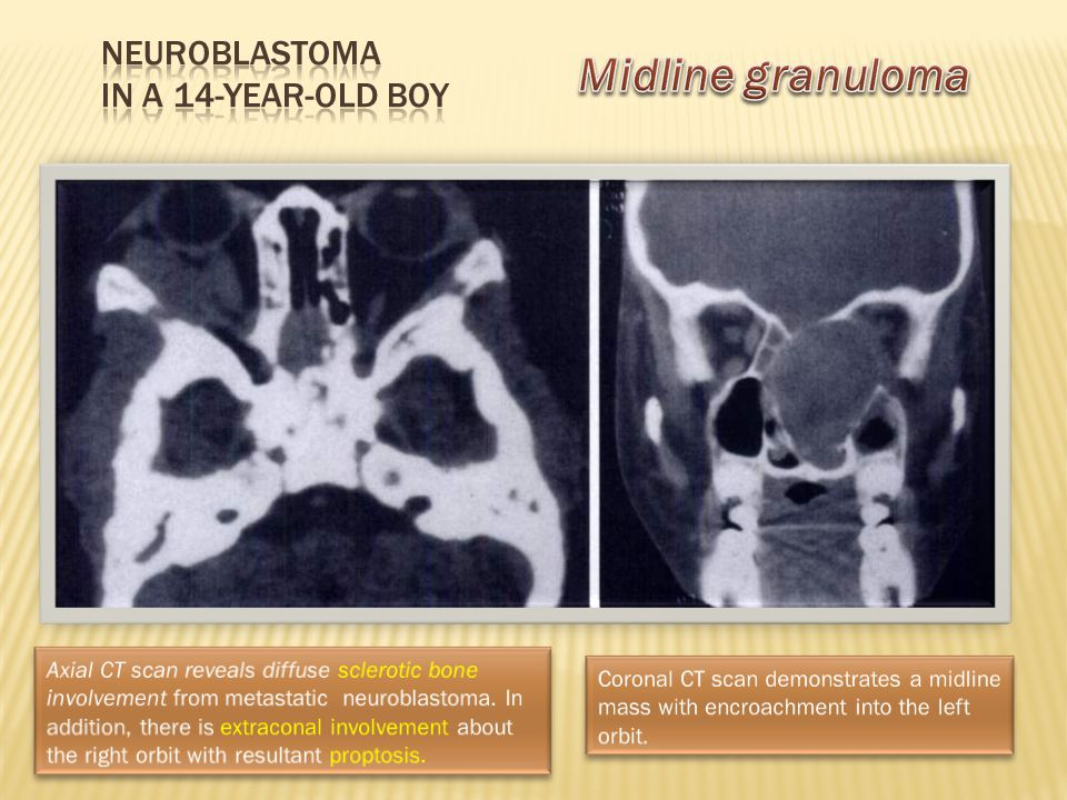 Neuroblastoma in a 14-year-old boy