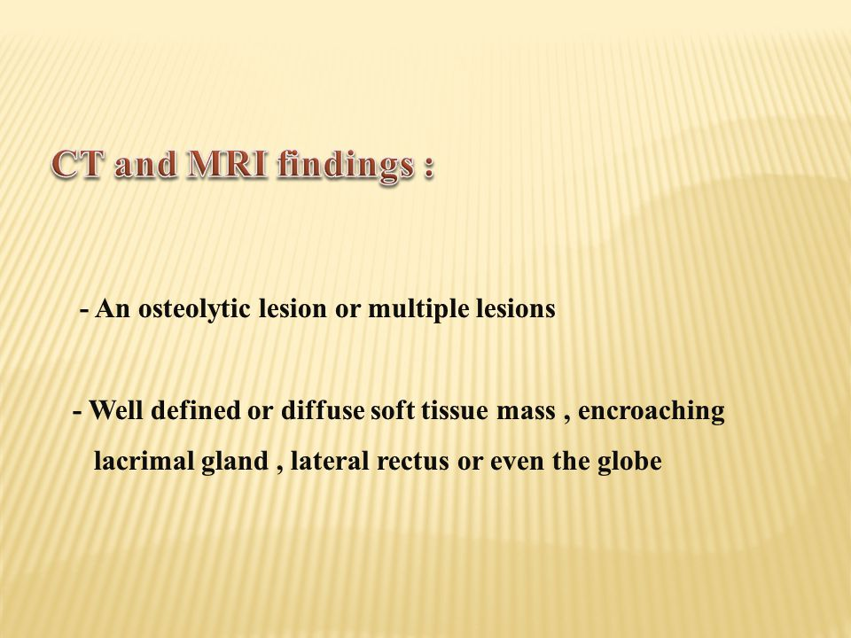 CT and MRI findings : - An osteolytic lesion or multiple lesions