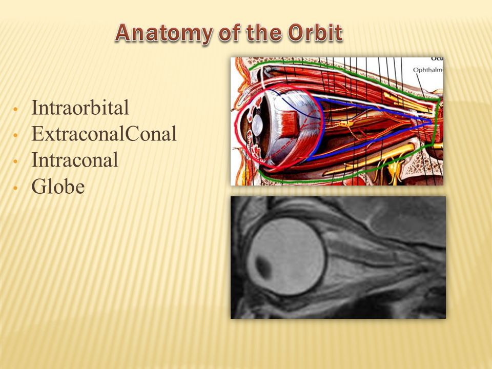 Anatomy of the Orbit Intraorbital ExtraconalConal Intraconal Globe