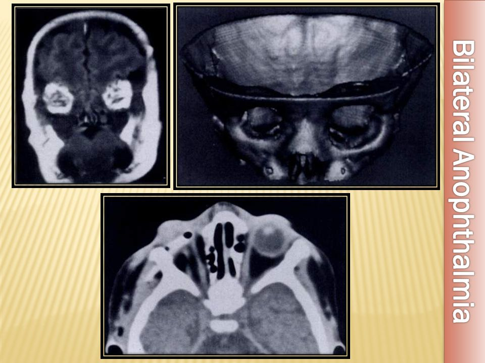 Bilateral Anophthalmia