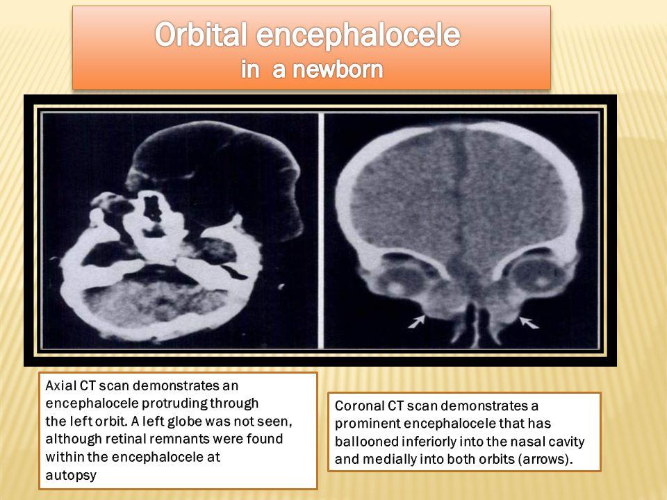 Orbital encephalocele in a newborn