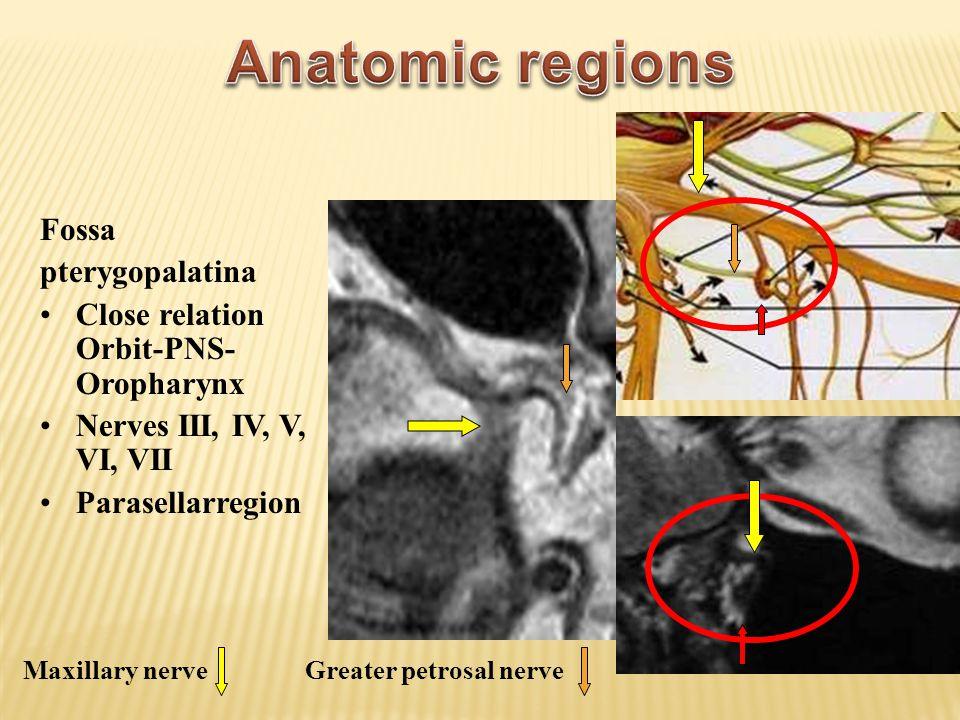 Anatomic regions Fossa pterygopalatina