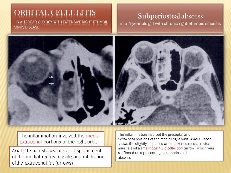 Subperiosteal abscess