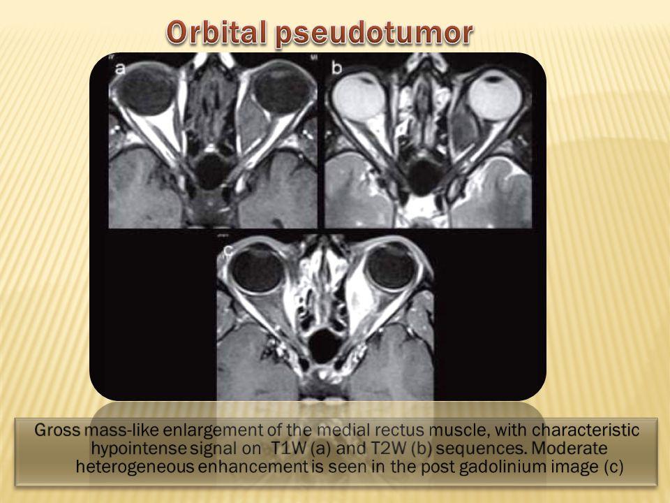 Orbital pseudotumor