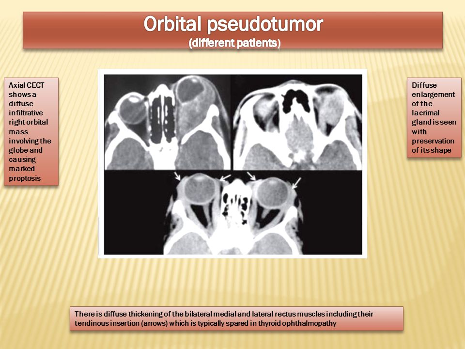 Orbital pseudotumor (different patients)