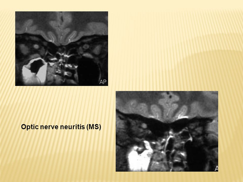 Optic nerve neuritis (MS)