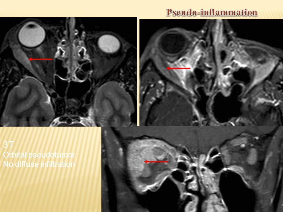 Pseudo-inflammation 3T Orbital pseudotumor No diffuse infiltration