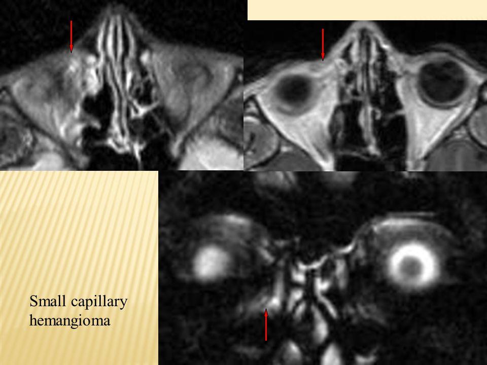 Small capillary hemangioma