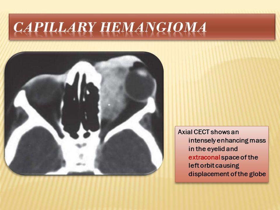 Capillary hemangioma