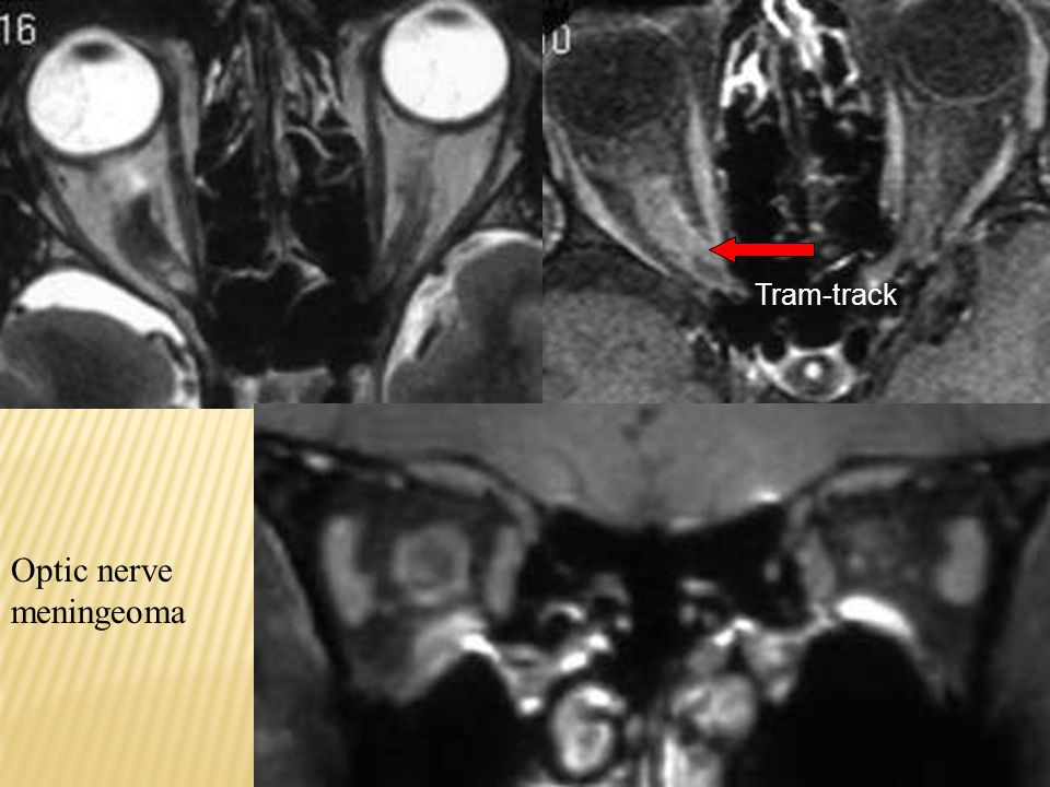 Tram-track Optic nerve meningeoma
