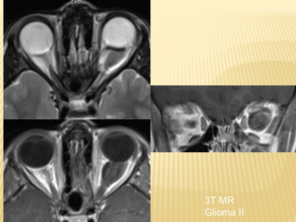 3T MR Glioma II