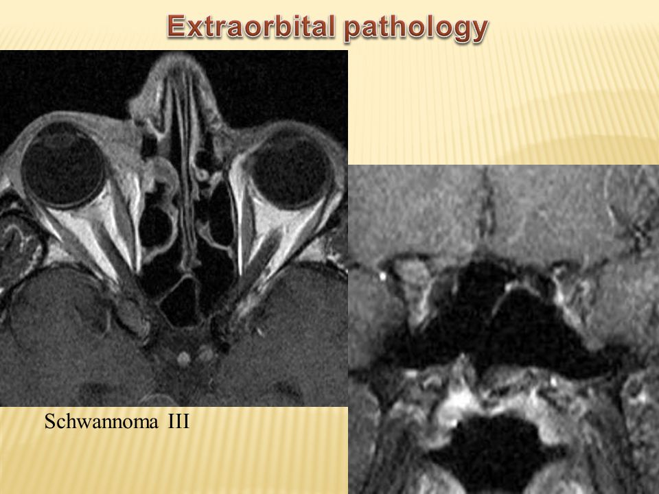 Extraorbital pathology