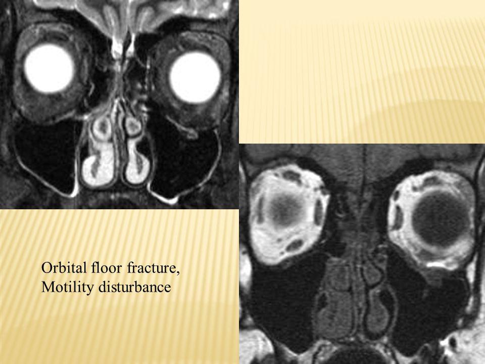 Orbital floor fracture,