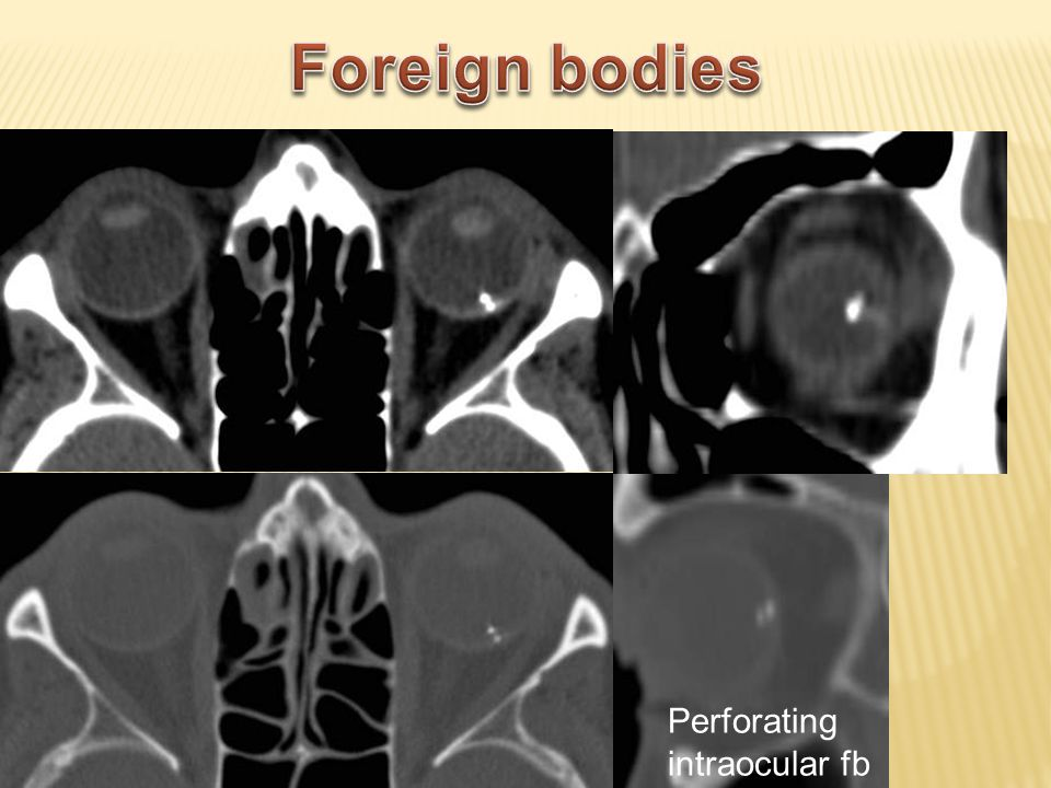 Foreign bodies Perforating intraocular fb