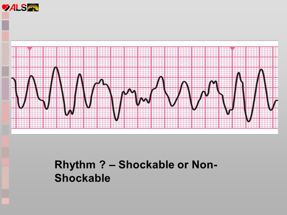 Rhythm – Shockable or Non-Shockable