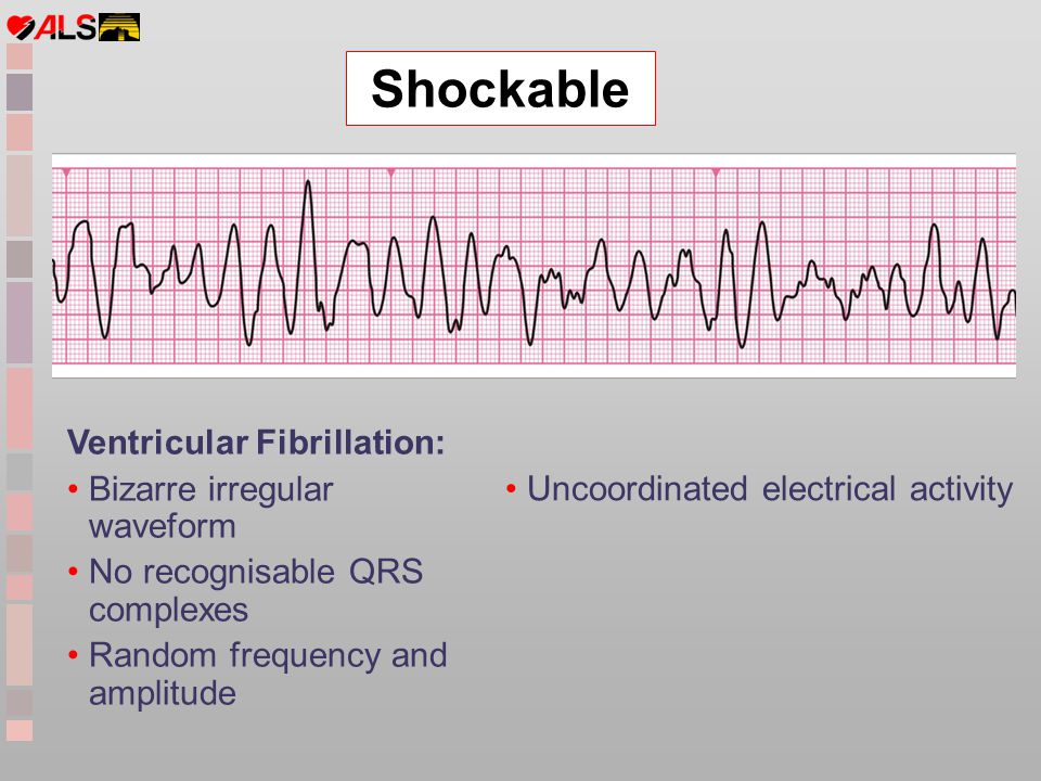 Shockable Ventricular Fibrillation: Bizarre irregular waveform