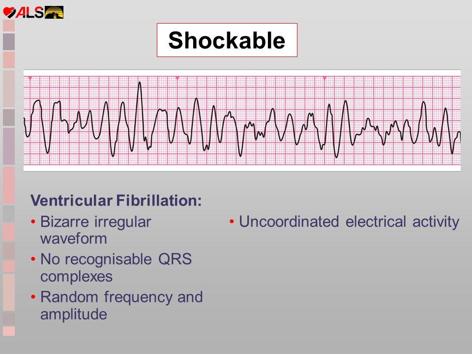 Shockable Ventricular Fibrillation: Bizarre irregular waveform