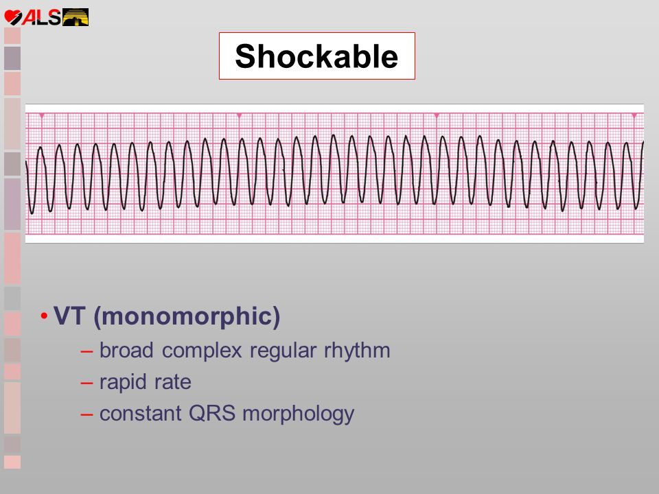 Shockable VT (monomorphic) broad complex regular rhythm rapid rate