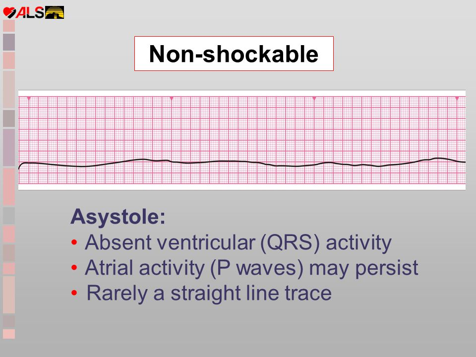 Non-shockable Asystole: Absent ventricular (QRS) activity