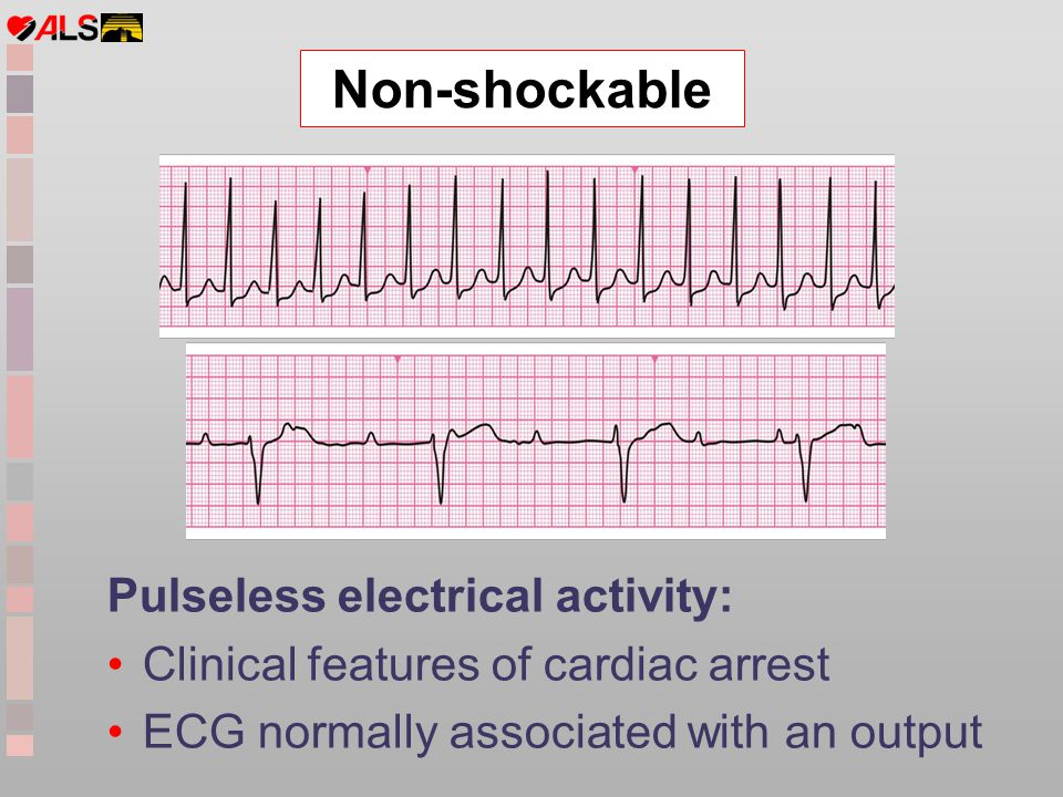 Non-shockable Pulseless electrical activity:
