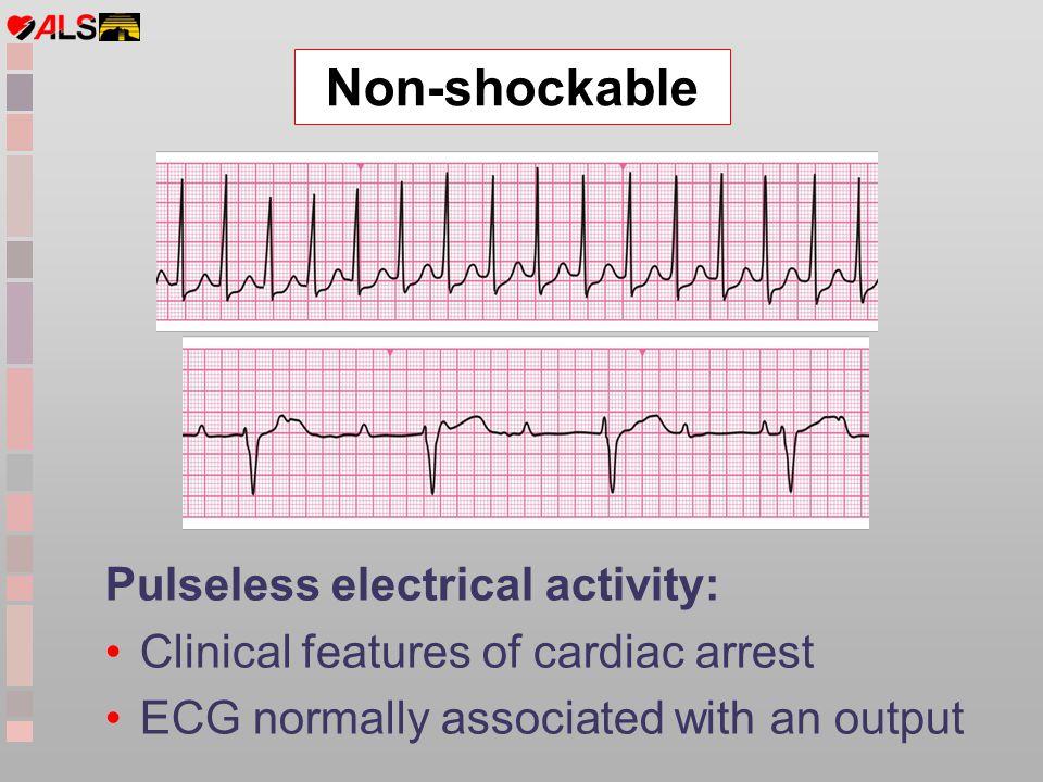 Non-shockable Pulseless electrical activity: